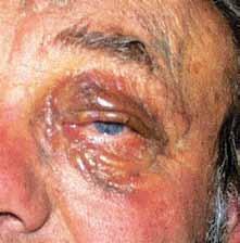 Lymfangiomatóza postihující obě oči.
