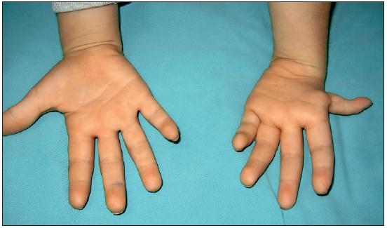 Fig. 6. Grade 3 thumb hypoplasia in a 10 year old male