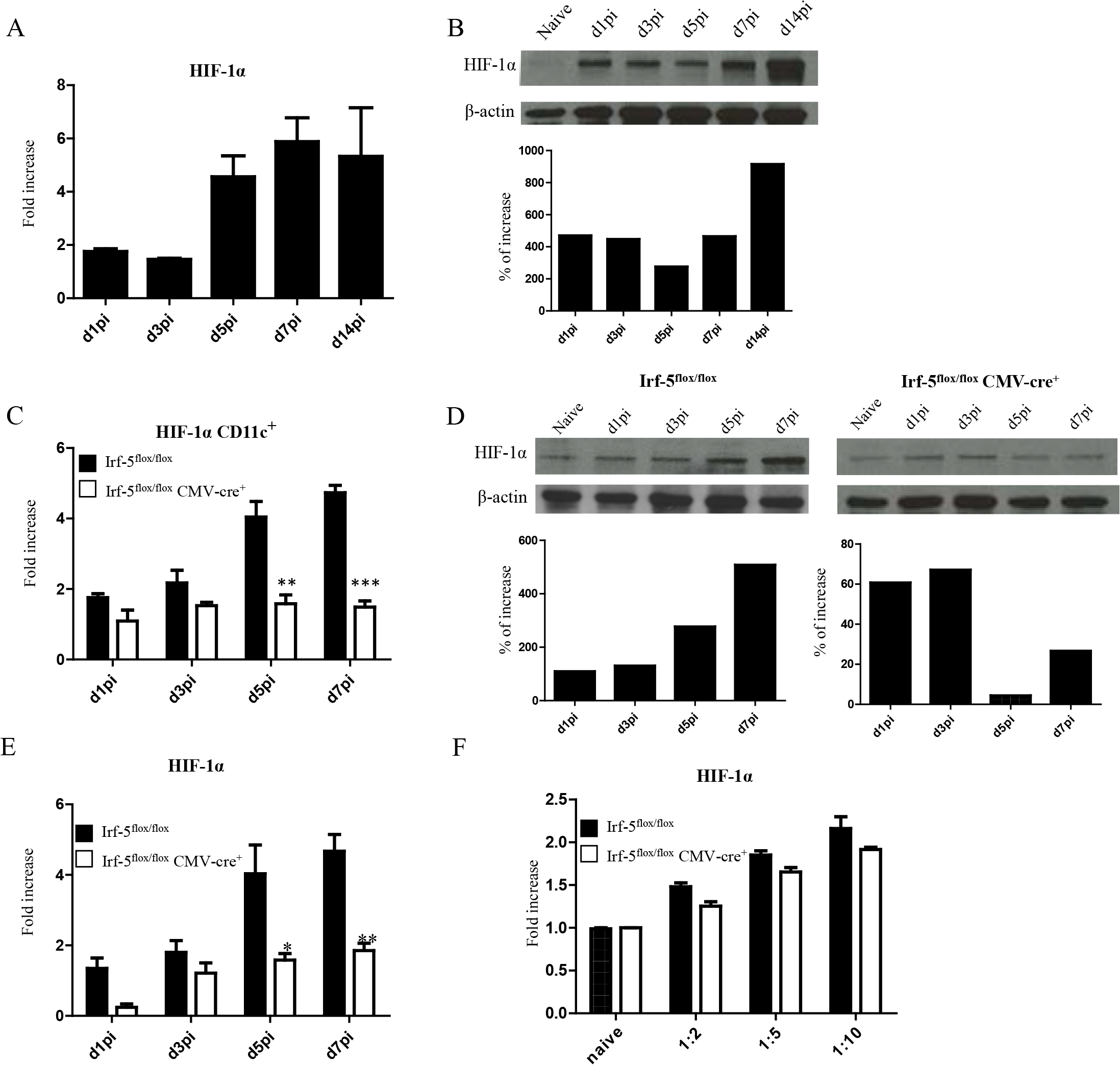 <i>L</i>. <i>donovani</i> infection induces HIF-1α expression in CD11c<sup>hi</sup> splenic DCs in an IRF-5 dependent manner.