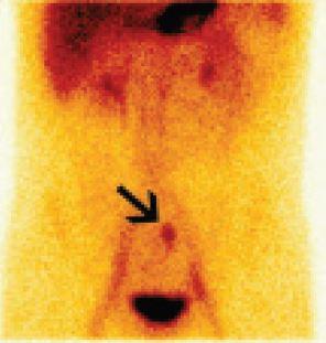 Statický scintigram dutiny břišní za 20 minut po i. v. aplikaci radiofarmaka. Akumulace <sup>99m</sup>Tc-pertechnetátu v ektopické žaludeční sliznici v Meckelově divertiklu v horním hypogastriu vlevo od střední čáry pod bifurkací aorty.