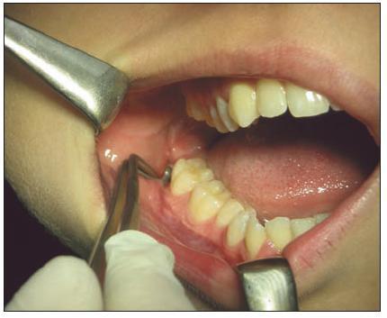 Prázdné zubní lůžko po extrakci zubu 48