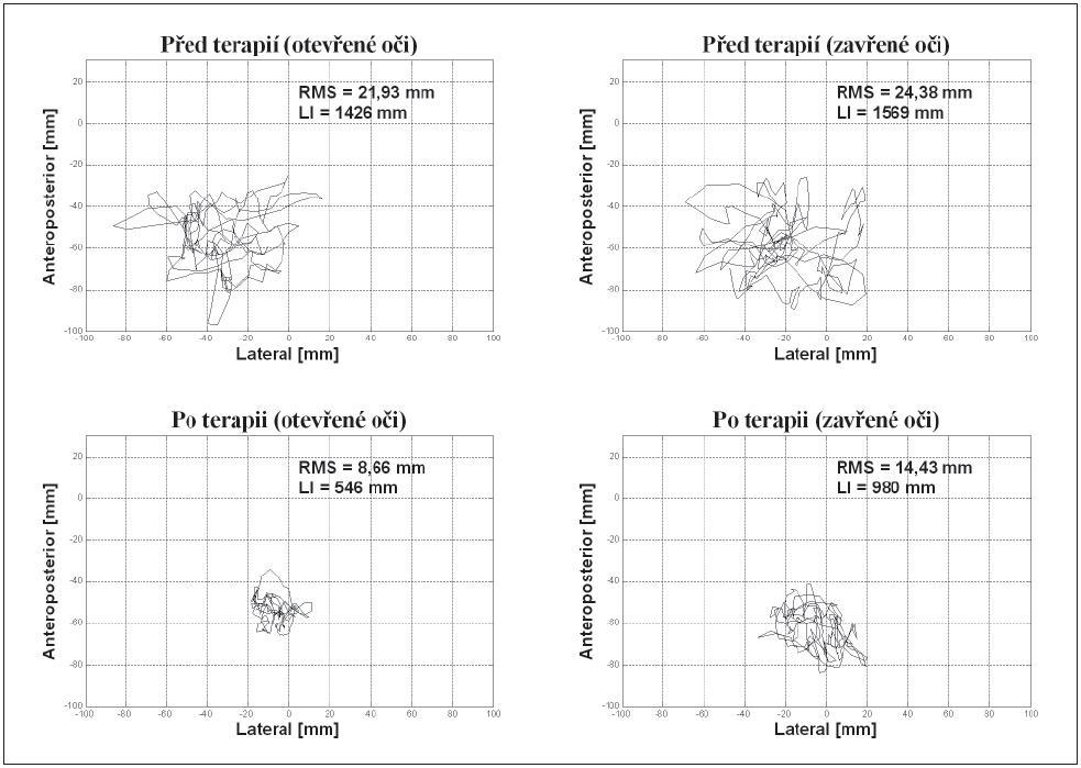 Porovnání statokineziogramů před terapií a po jejím skončení. RMS: střední kvadratická odchylka statokineziogramu, LI: délka trajektorie statokineziogramu.
