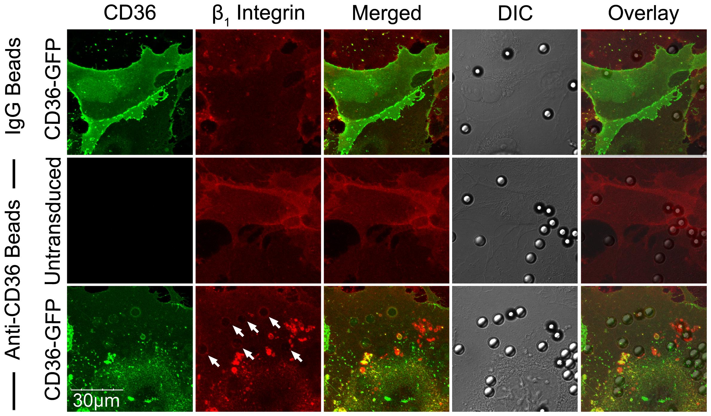 β<sub>1</sub> integrin recruitment by adherent anti-CD36 coated beads on HMEC-1.