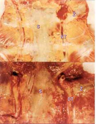Panel ukazuje podél sterna probíhající obě vnitřní mamární arterie u normálního pacienta a pacienta s koarktací, kde jsou vlivem kolaterálního toku značně dilatované.