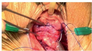 Je důležité jehlu udržovat pod povrchem vagíny a paralelně k němu, abychom předešli poranění močového měchýře. Průběh jehly je třeba vést tak, aby jehla prosvítala, ale je důležité neprotahovat suturu skrze vaginální stěnu, protože odhalené stehy mohou být příčinou vzniku infekce a dyspareunie.
