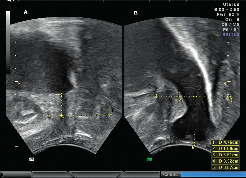 Cystokéla. A – UVJ v klidu, B – sestup UVJ o 1,26 cm, progrese cystokély 3,67 cm pod horizontálou