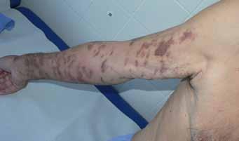 d) po 6 týdnech od zahájení léčby