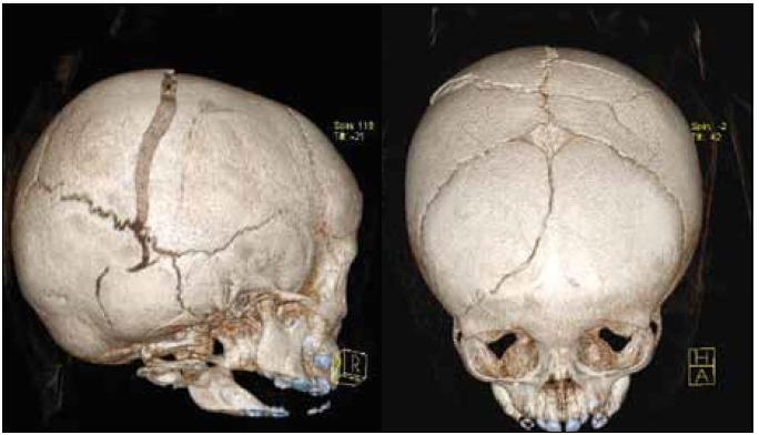 Obr. 1, 2. Vstupní CT vyšetření (3D rekonstrukce) – boční a předozadní pohled.