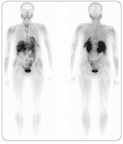 Mnohočetný myelom ve stadiu III, suspektní relaps. Na celotělových <sup>99m</sup>Tc-MIBI scintigramech neprokazána patologická akumulace radiofarmaka v kostní dřeni ani extramedulárně. Relaps neprokázán.
