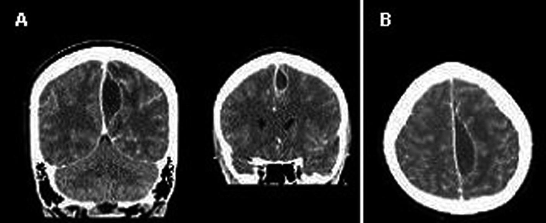 Intrakraniální absces v koronární (A) a axiální (B) projekci na CT mozku (20. den po primární endoskopické endonazální operaci)