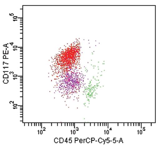 Akutní bifenotypová leukemie dle EGIL (WHO 2001). Fenotyp leukemické populace (červeně): CD45 slabě, CD19+, cCD22+, cCD79a+, CD33+, CD13slabě, CD117+. Skóre pro B-lymfoidní řadu- 3, skóre pro myeloidní řadu-3.