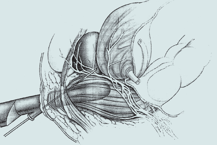 Umístění jehly při periprostatické anestezii.