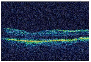 OCT sken pravej makuly tri mesiace po vysadení Citalopramu – takmer fyziologický nález