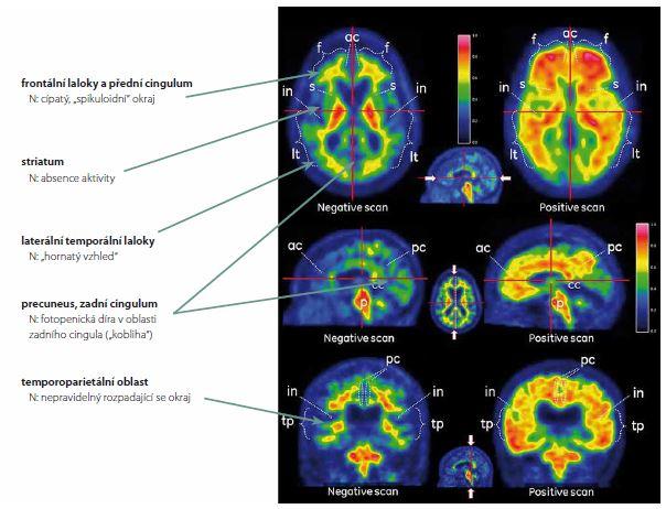 Rozdíl mezi normálním PET skenem mozku (levý sloupec) a skenem zvýšeného mozkového amyloidu (pravý sloupec). Fig. 1. Difference between normal PET scan of the brain (left column) and a scan with high amyloid content (right column).