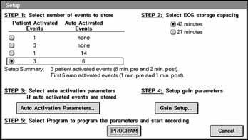 Nastavení záznamu EKG v přístroji Reveal.