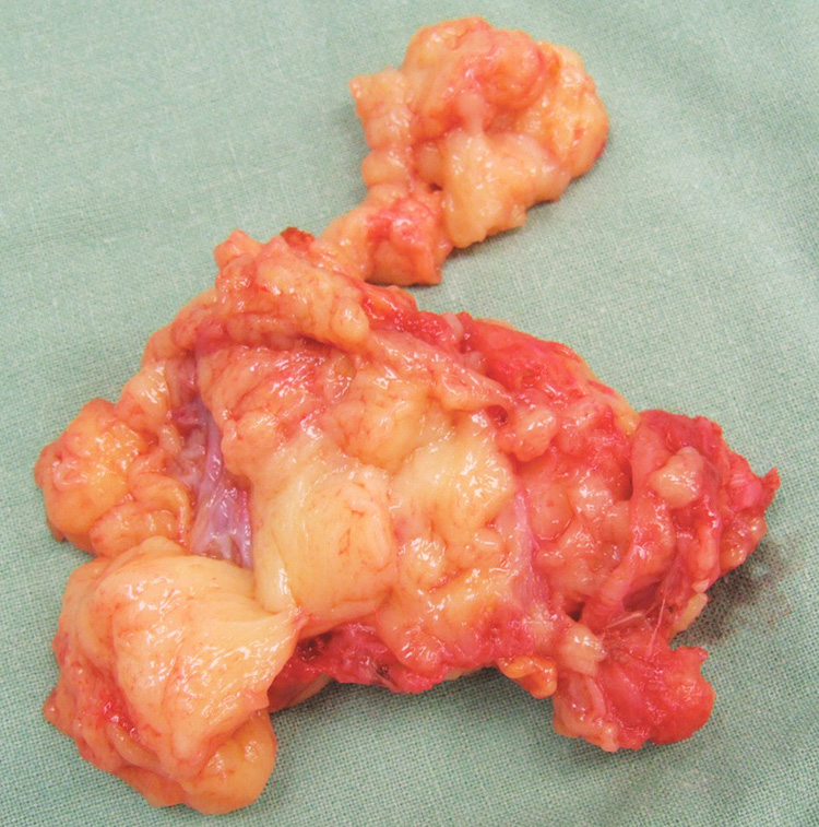 Fig. 6. Resected specimen sent for histological examination