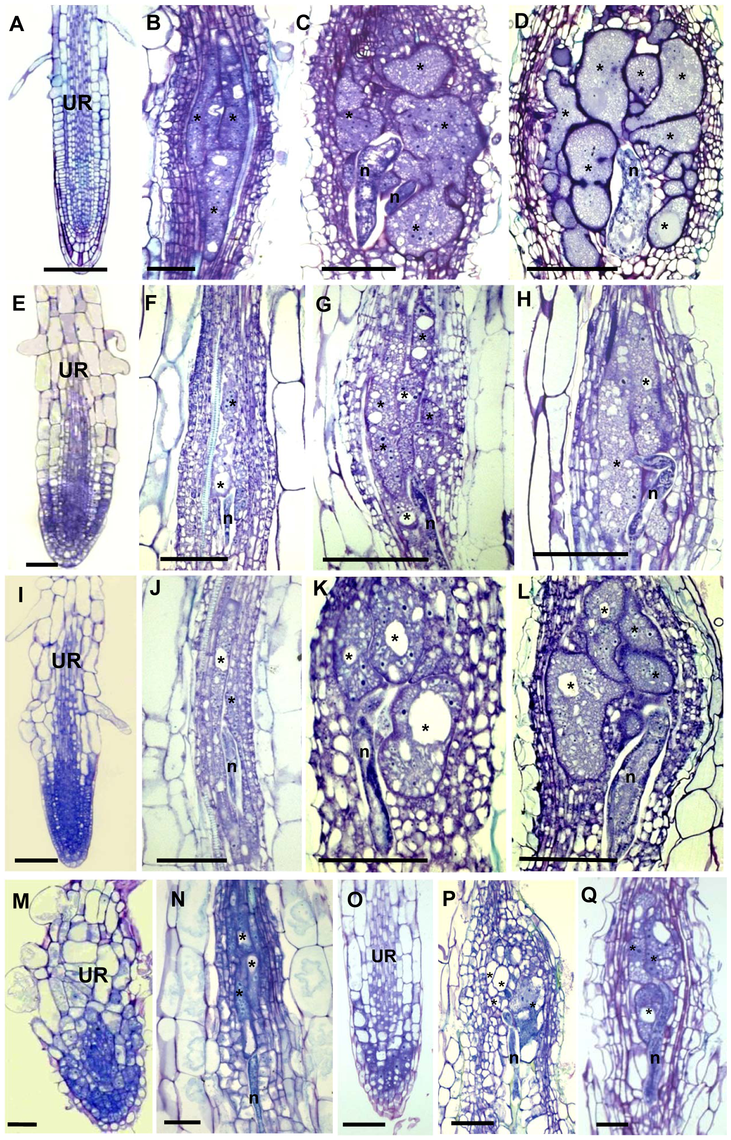 Histological Analysis of Galls and Roots in γ-Tubulin Mutant and Wild-Type <i>Arabidopsis</i> seedlings.