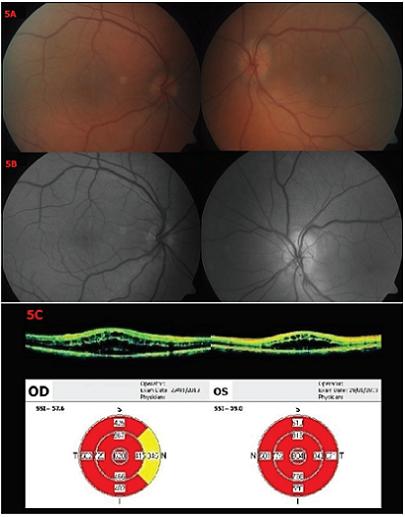 Nález 9 týdnů po prvním vyšetření Biomikroskopické vyšetření fundu OPL – 5A – barevné snímky, 5B – red-free snímky – vlevo ubylo třískovitých hemoragií parapapilárně, jinak se nález nemění. 5C – OCT – patrná progrese nálezu na OPL