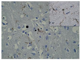 A 51 years old women cycling over the railway crossing who was knocked down by a lorry. Arrowhead indicates juxtavascular PSGL immunopositive microglial cells. Ramification and branching of microglial projections inside brain neurophil. MC – microglial cell. PSGL immunopositivity of MC (see in detail). Square indicates pericellular oedema.