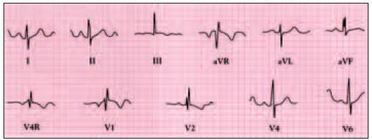 Elektrokardiogram pacienta s defektem septa síní typu ostium secundum ukazuje sinusový rytmus, deviaci osy doprava, komplexy rsR' od V4R do V4 vlivem nekompletní blokády pravého raménka.