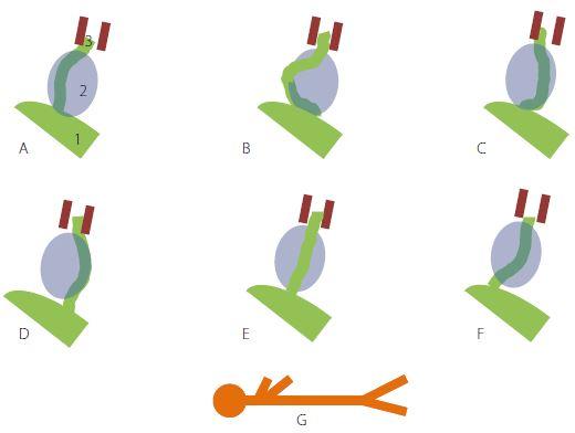 Poloha lícního nervu vůči nádoru: A – ventro-kraniálně, B – rostro-mediálně, C – ventro-kaudálně, D – kaudálně, E – dorzálně, F – ventrálně (ventro-centrálně), G – poloha pacienta; 1) mozkový kmen, 2) tumor, 3) n. VII. ve vnitřním zvukovodu. Fig. 1. Facial nerve position in relation to the tumour: A – ventro-cranial, B – rostromedial, C – ventro-caudal, D – caudal, E – dorsal, F – ventral (ventro-central), G – patient position; 1 – brainstem, 2 – tumor, 3 – n. VII. in the internal acoustic meatus.