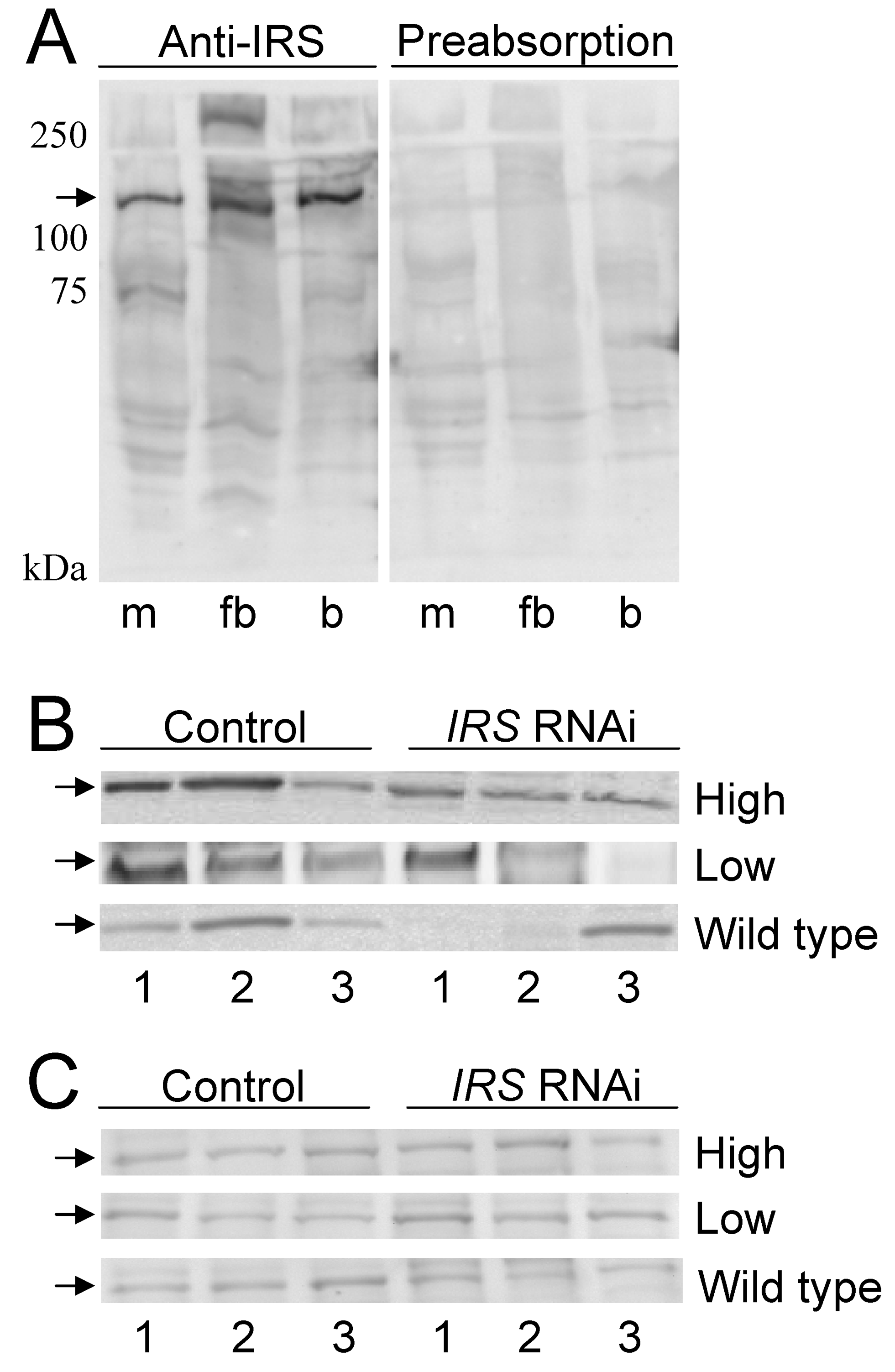 Western blot assessment of peripheral IRS knockdown.