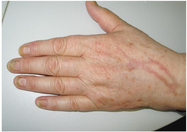 Série Beauových linií po opakovaných cyklech i. v. chemoterapie Na hřbetě ruky postflebitické hyperpigmentace po infuzích.