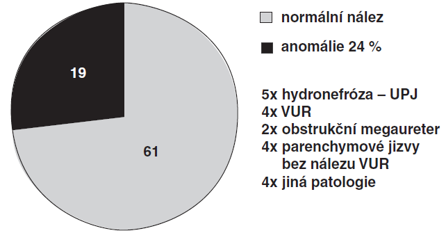Anomálie kontralaterální ledviny u 24 % dětí s MCDK.