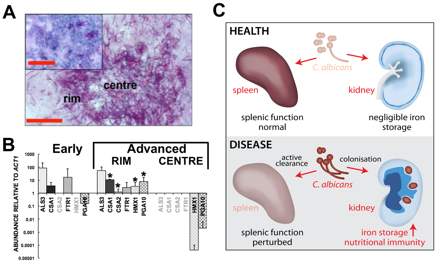 Systemic candidiasis impacts upon iron homeostasis of both the fungus and the host.