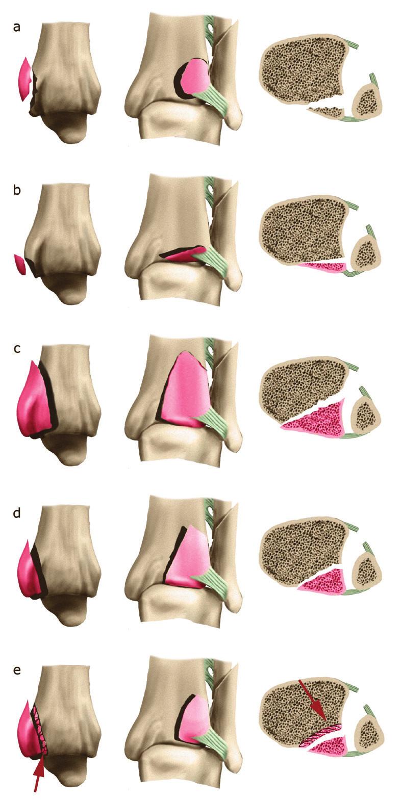 Heimova klasifikace z r. 1982 a – extraartikulární avulze tuberculum posterius tibiae se začátkem lig. tibiofibulare posterius, b – podélný úzký extraartikulární fragment zadní hrany tibie odtržený s úponem kloubního pouzdra, c – velký intraartikulární fragment zadní hrany, d – malý intraartikulární fragment zadní hrany, e – malý intraartikulární fragment s impresí přiléhající kloubní plochy tibie. Volně podle [31]. Fig. 5: Heim classification published in 1982 a – extraarticular avulsion of tuberculum posterius tibiae with origin of lig. tibiofibulare posterius, b – a longitudinal narrow extraarticular fragment of posterior tibial edge avulsed with insertion of articular capsule, c – large intraarticular fragment of posterior edge, d – small intraarticular fragment of posterior edge, e – small intraarticular fragment, with impression of adjacent articular surface of distal tibia. Adapted from [31].