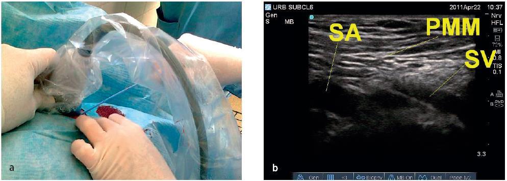 a, b. Technika punkce a zobrazení vena subclavia pod klíční kostí
