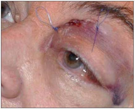 Periorbitální hematom jako komplikace.