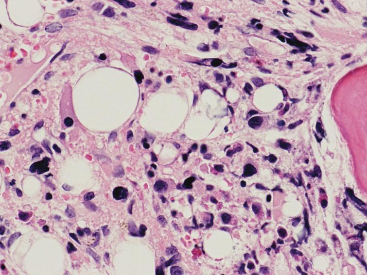 Fibrotické štádium PMF – rozvinutá kolagénová fibróza (eozinofilné hmoty) a malé MGK s bizardnými a výrazne denznými jadrami tvoriace tesné zhluky (hematoxylín-eozín 400x).