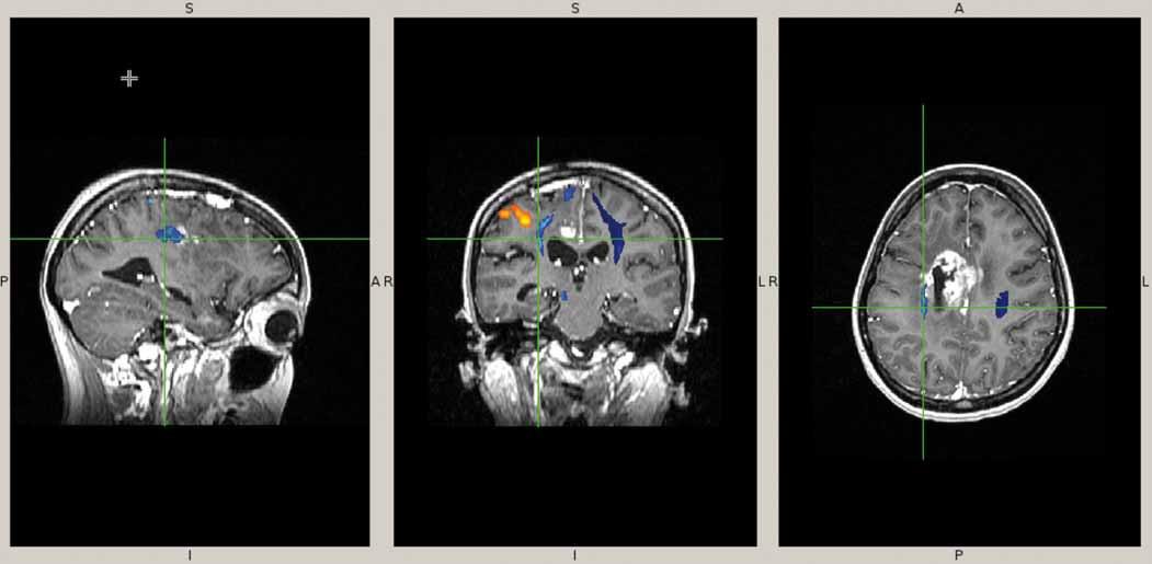 Funkční předoperační MRI.