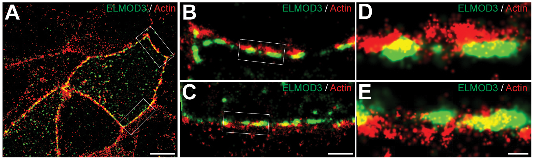 ELMOD3 is localized at the plasma membrane.