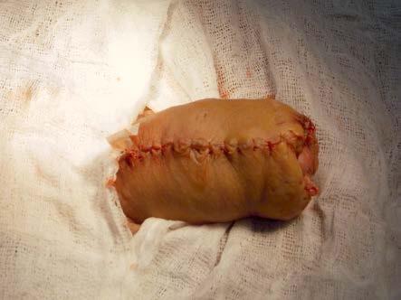 Výsledná sutura po první operaci Fig. 5. Resulting suture after the first operation