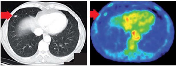 PET/CT ložisko v dolním laloku.
