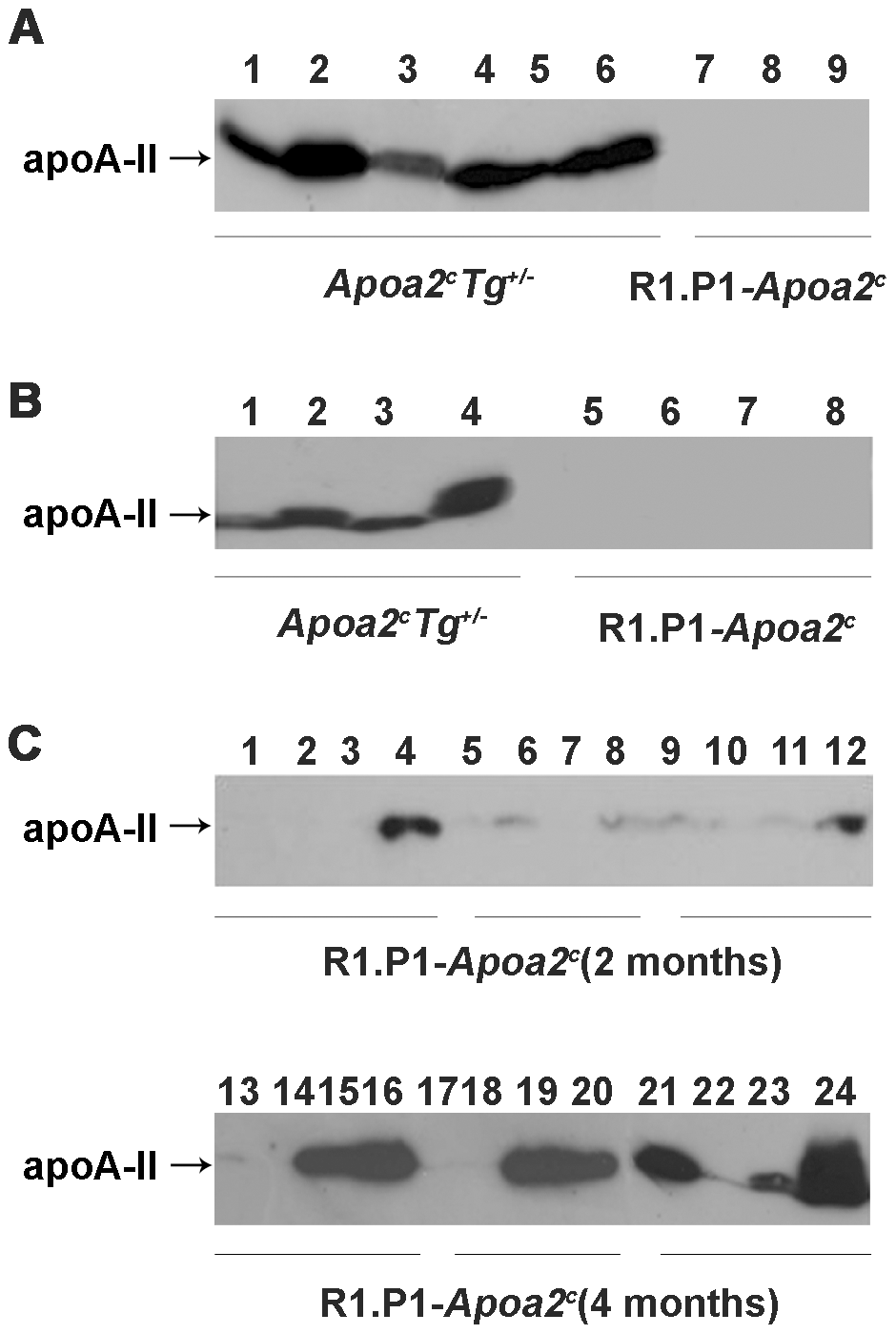 ApoA-II protein detected in amyloid fibril fractions isolated from various muscles.