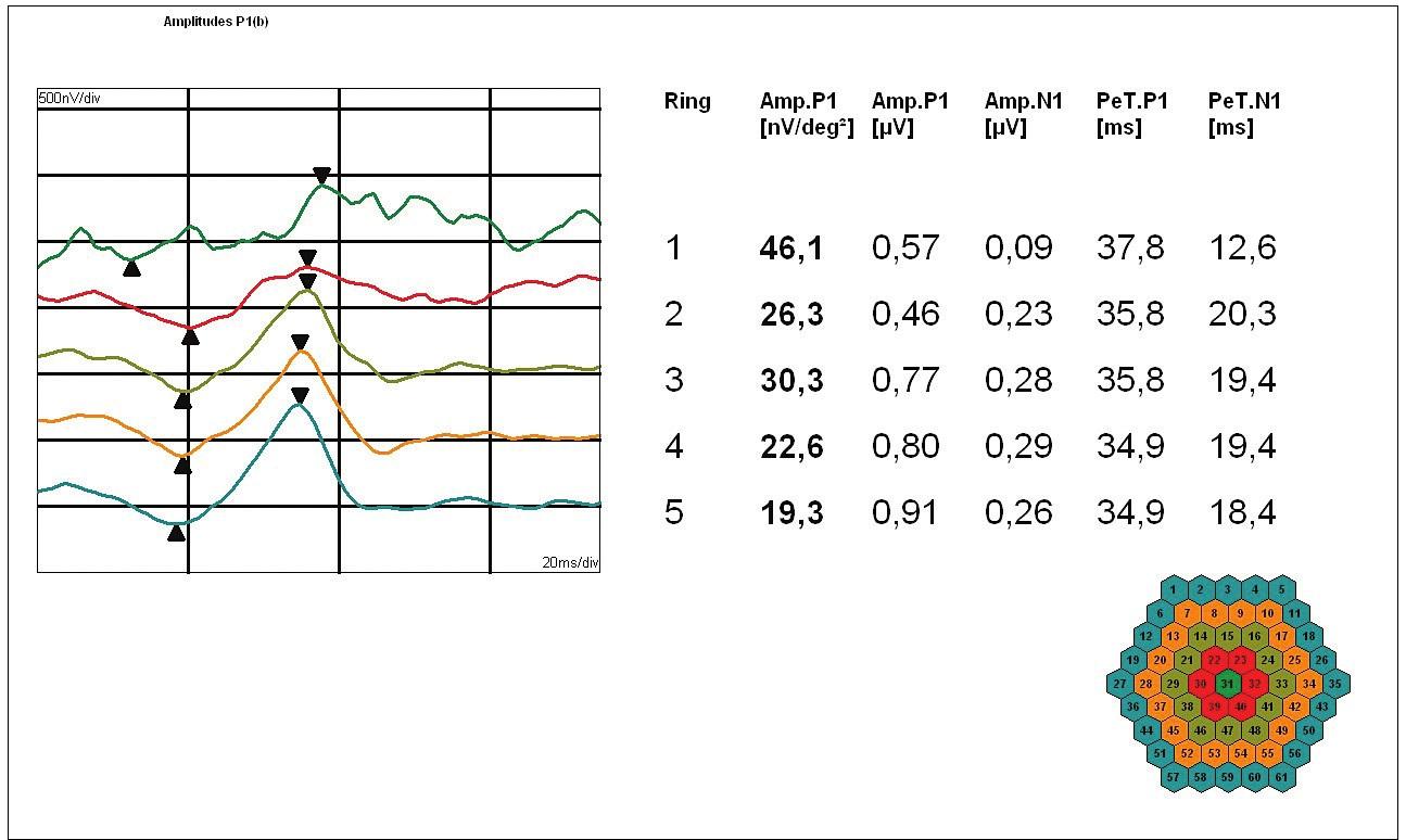 Obr. 3b. MfERG pravého oka: Amplitudy [nV/deg2] a latence [ms] pozitivního vrcholu P1; shora foveolární aktivita, snížená na 50 % normy, a dále průměrné odpovědi v soustředných kruzích kolem foveoly podle vzrůstající vzdálenosti od centra