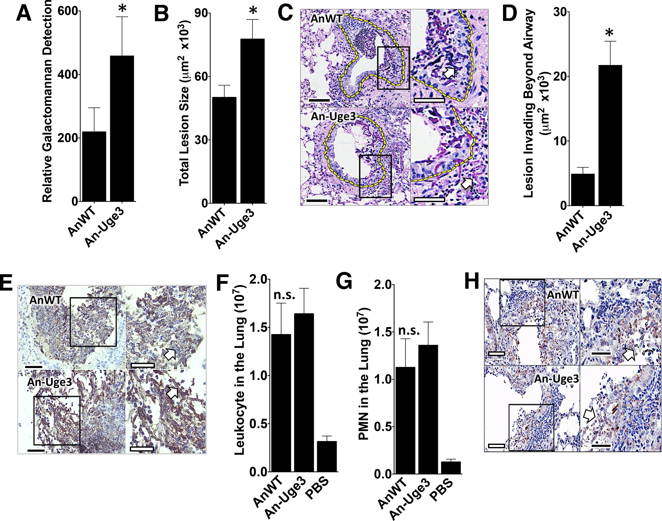 Increase in virulence of the <i>A</i>. <i>nidulans</i> strain overexpressing <i>uge3</i> is associated with increase in fungal burden and pulmonary tissue invasion.