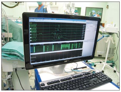 Neurologické peroperační sledování – peroperační foto Fig. 5. Intraoperative neurological monitoring – intraoperative view