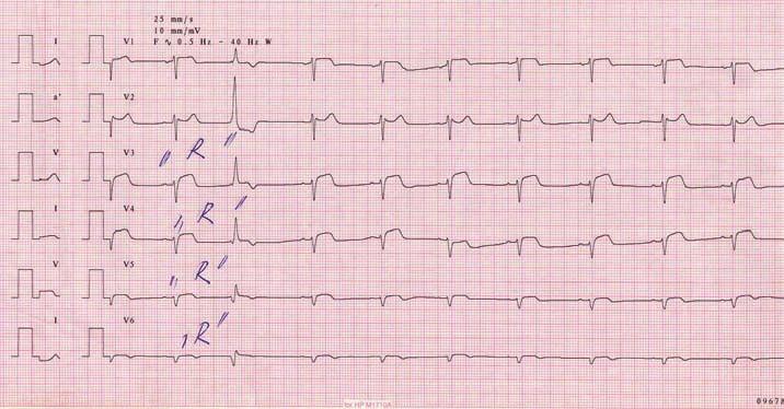 Infarkt pravé komory srdeční při uzávěru proximálního úseku pravé věnčité tepny.