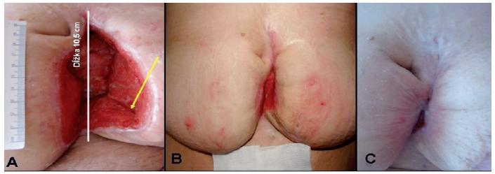 Stav rany po liečbe s NPWT. A – rana po 17 dňoch používania NPWT – spodina čistá, granulujúca, okraje epitelizujúce (dĺžka rany 10,5 cm, hĺbka 5,5 cm, šírka 7,8 cm); B – rana po mesiaci od ukončenia liečby NPWT, ošetrovaná vlhkou terapiou (lokálne hydrofiber so striebrom a sekundárne krytie; C – rana zhojená po 90 dňoch