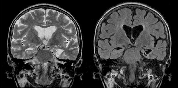 Posttermokoagulační pseudocysta po proběhlé SAHE (zobrazena drobná postnekrotická pseudocysta v mediálním temporálním laloku vlevo s výraznou okolní atrofií – koronární rovina TSE T2 a FLAIR)