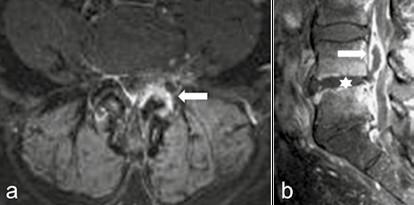 Septická artritida a spondylodiscitida