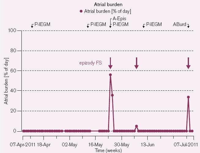 Nově zachycená paroxyzmální FS – celkem 3 paroxyzmy v časovém horizontu 3 měsíců. První z nich – nejdelší – trvá přibližně 55 % a 35 % ze 24 hod ve 2 po sobě následujících dnech, tedy celkem asi 22 hod.