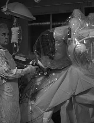 Robot v poloze nad pacientem; operatér na straně pacienta užívá běžné laparoskopické nástroje. Pacient je ve strmé poloze hlavou dolů.