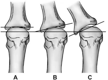 Hodnocení kongruence kloubních ploch MTP kloubu palce. Legenda: A – kongruentní kloub, B – deviace kloubu, C – subluxace kloubu (upraveno podle Franka, 2009).