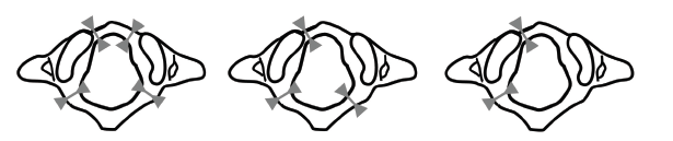 III typ zlomeniny atlasu (Jeffersonova zlomenina) dvou až čtyřúlomková podle počtu fragmentů.