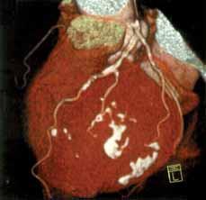 3D-zobrazení CT-koronarogramu levé věnčité tepny s četnými kalcifi kacemi v její stěně (bílá ložiska).